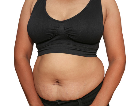 Women with fat belly and stretch marks. photo