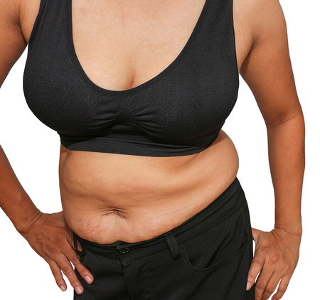 obese women: Obese women accumulate fat around the abdomen, upper arms. Stock Photo