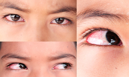 set of boy with conjunctivitis. Stock Photo
