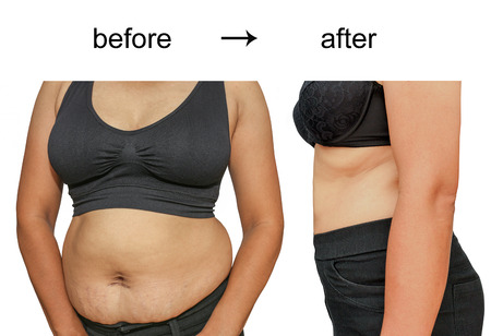 unhealthy diet: Womans body before and after a diet