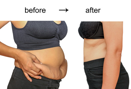 slim tummy: Womans body before and after a diet