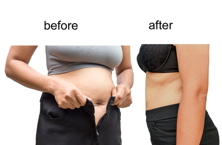 over weight: Womans body before and after a diet