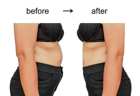Il corpo della donna prima e dopo una dieta Archivio Fotografico - 37598019