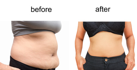 Woman's body before and after a diet 版權商用圖片 - 37598198