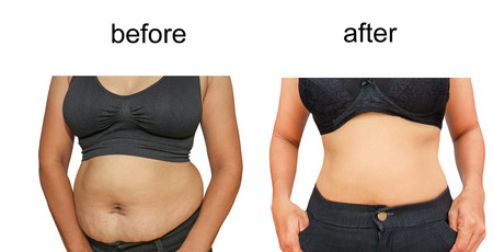 weightloss: Womans body before and after a diet