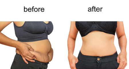 liposuction: Womans body before and after a diet