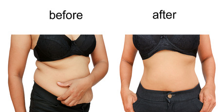 fit on: El cuerpo de la mujer antes y despu�s de una dieta Foto de archivo