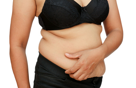 diet woman: Women with fat belly and stretch marks. Stock Photo