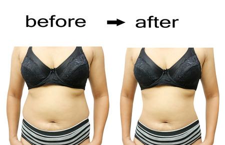 vientre femenino: El cuerpo de la mujer antes y después de una dieta Foto de archivo