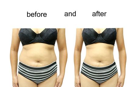 obesidad: El cuerpo de la mujer antes y despu�s de una dieta Foto de archivo