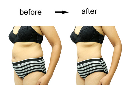 obesity: Womans body before and after a diet