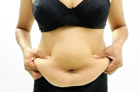 mujer celulitis: Las mujeres con el vientre y las estrías grasas.