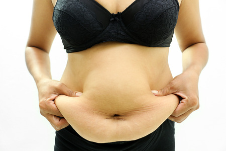 hands on stomach: Women with fat belly and stretch marks. Stock Photo