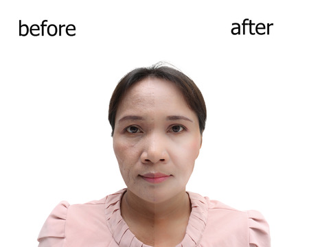 retouch: Asian middle-aged woman before and after retouch, concept of makeup or plastic surgery.