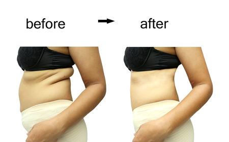 dieta sana: El cuerpo de la mujer antes y despu�s de una dieta Foto de archivo