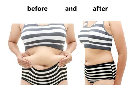 mujeres gordas: El cuerpo de la mujer antes y después de una dieta Foto de archivo