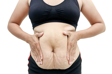 oversize: Womans body has fat and cellulite. Stock Photo
