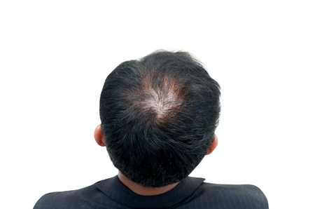 thinning: Bald head of a man on white background