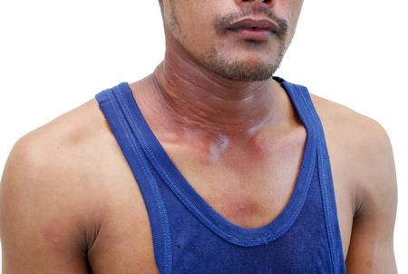 rash: A man with dermatitis problem of rash ,Allergy rash and Health problem.