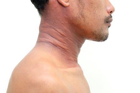 sarpullido: Un hombre con un problema de la dermatitis, erupción de la alergia y problemas de salud.
