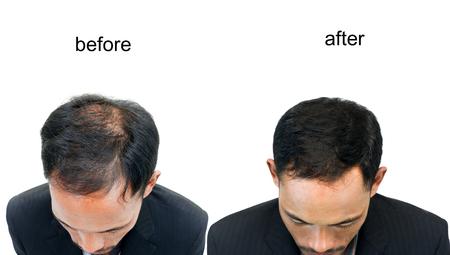 calvicie: Antes y después de cabeza calva de un hombre sobre fondo blanco. Foto de archivo