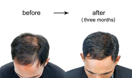 Voor en na kale hoofd van een man op een witte achtergrond. Stockfoto