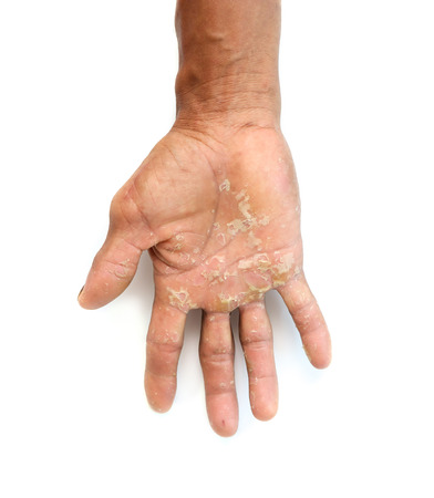 Poor hands with hard dry.