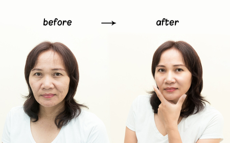 Asian middle-aged woman before and after retouch, concept of makeup or plastic surgery.