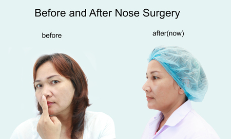 Before and After Nose Surgery of asian women