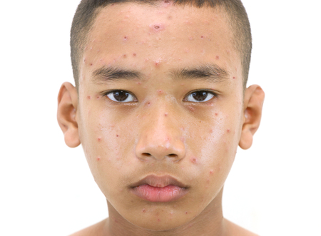 Varicella zoster virus or Chickenpox bubble rash on a boy.