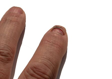 injured index finger and dying nail on a white