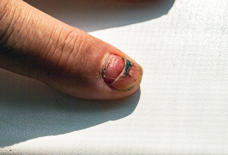 Damaged nail. Formation of the new instead of the old. Injury