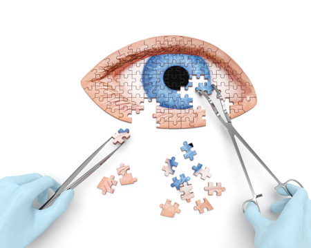 surgery tools: Eye operation (vision correction) puzzle concept: Stock Photo