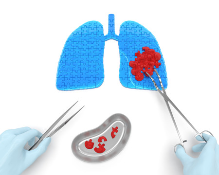 Lungs cancer operation oncotomy puzzle concept: hands of surgeon with surgical instruments (tools) performs surgery to remove cancerous growth (malignant swelling or benign tumor)