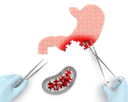 Stomach cancer operation partial resection oncotomy puzzle concept: hands of surgeon with surgical instruments performs surgery to remove cancerous growth malignant swelling with part of stomach