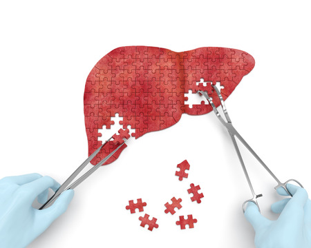 Liver operation puzzle concept: hands of surgeon with surgical instruments tools performs liver surgery as a result of hepatic disorder cirrhosis, hepatic cancer, hepatitis