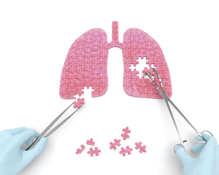 Lungs operation puzzle concept: hands of surgeon with surgical instruments tools perform lungs surgery as a result of respiratory disease, pneumonia, tuberculosis, bronchitis, asthma, lung abscess