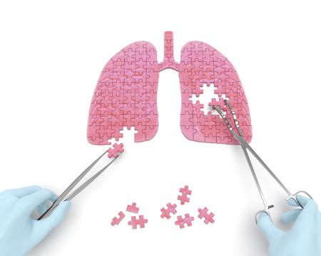 cirujano: Concepto del rompecabezas pulmones operación: las manos del cirujano con herramientas de instrumentos quirúrgicos realizan cirugía pulmones como resultado de enfermedades respiratorias, neumonía, tuberculosis, bronquitis, asma, absceso pulmonar