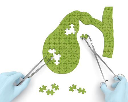 Gallbladder puzzle concept: hands of surgeon with surgical instruments perform gall bladder surgery as a result of cholelithiasis, cholecystitis, cholecystectomy, biliary dyskinesia Stock Photo
