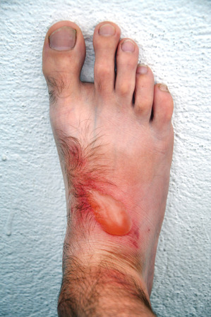 cutaneous: Phytophotodermatitis, cutaneous phototoxic skin inflammatory eruption from a plant named Dictamnus albus