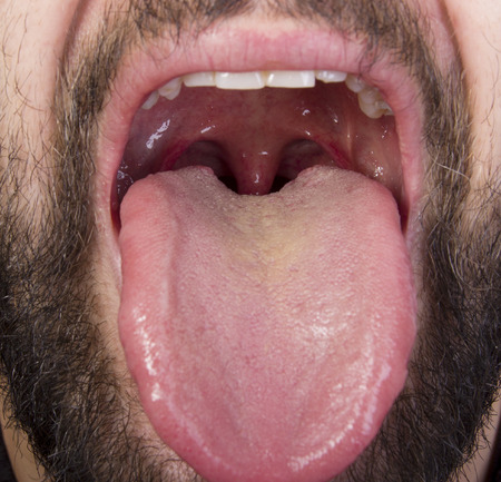 mouth: tonsil disease Stock Photo