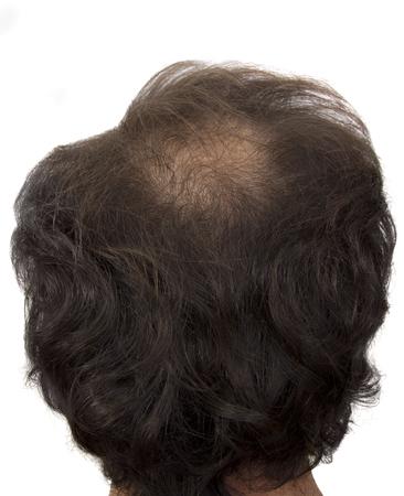 receding hairline: hair loss Stock Photo