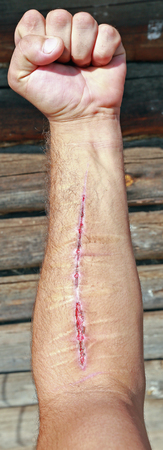 cut wrist: close-up of two wounded hands with old and new cuts on the background of the log house wall