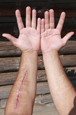 failed attempt: close-up of two wounded hands with old and new cuts on the background of the log house wall