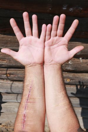 hand cut: close-up of two wounded hands with old and new cuts on the background of the log house wall