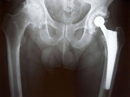 prothese: Xray der linken H�ftprothesen