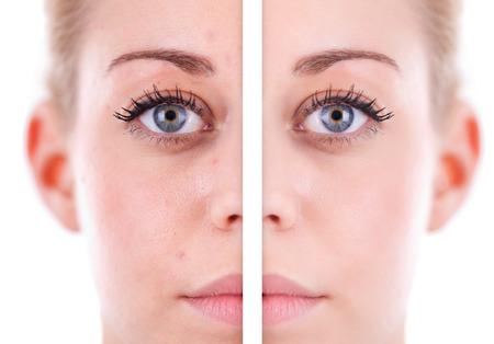 problema: Piel de la cara de la mujer cauc�sica, concepto de belleza antes y despu�s de contraste, el poder de retoque