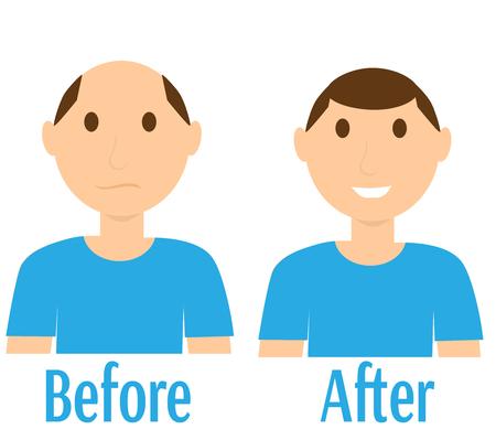 Before and after hair transplantation Illustration
