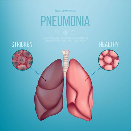 Image of a healthy lung and a lung affected by pneumonia. Vector illustration. A coronavirus that causes pneumonia. Lungs of patients with pneumonia. Realistic illustration.