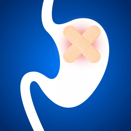 stomache: Gastritis, stomach ulcers. putters are closed. Illustration.